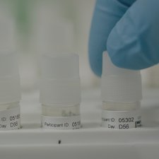Clinical trial samples being prepared for testing in the laboratory at the University of Oxford's Jenner Institute, UK.