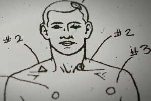 diagram of male body with markings of bullet entrance wounds